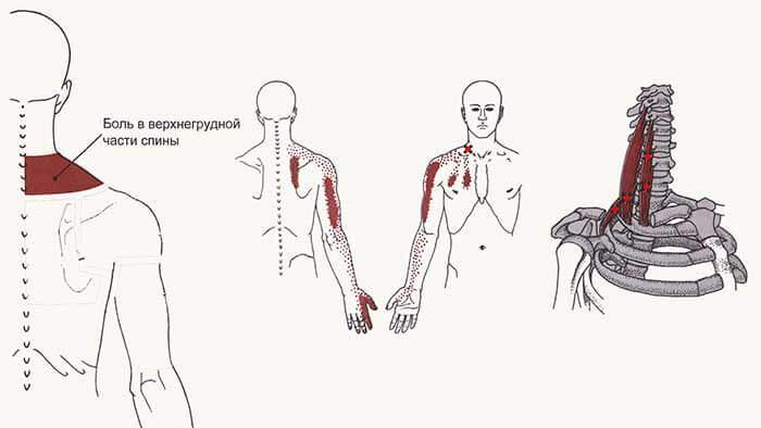 триггерные точки на спине