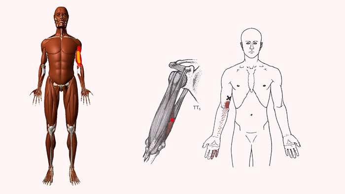 трёхглавая мышца плеча триггеры