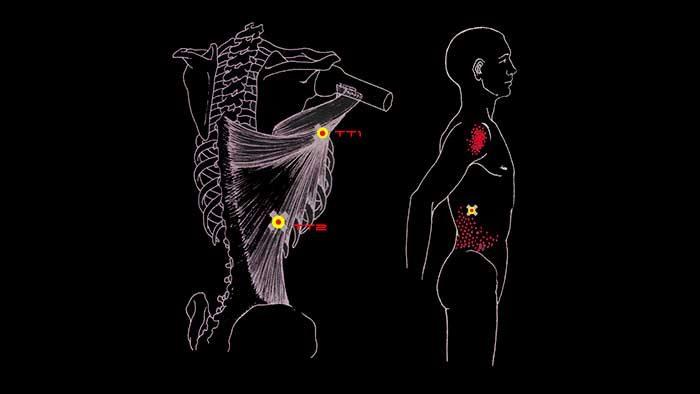 Фото спины широчайшие мышцы спины thumbnail