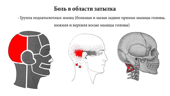 головная боль на затылке