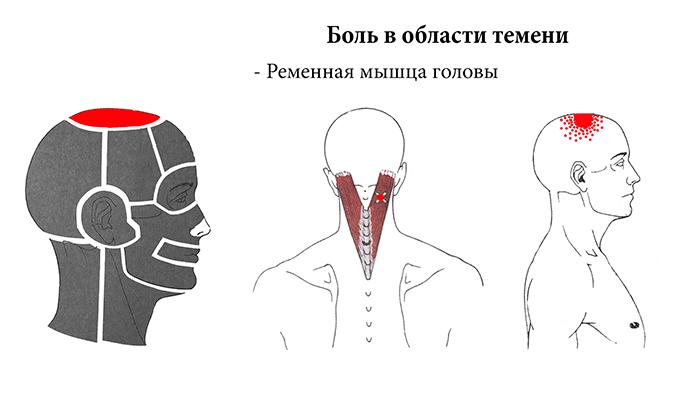 головная боль в области темени