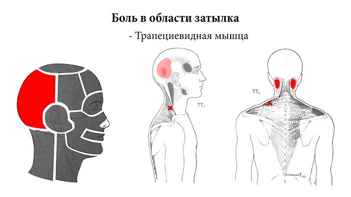 головная боль в области затылка