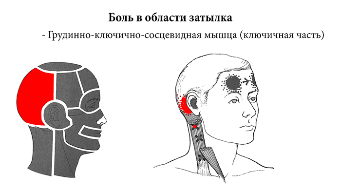 головные боли причины