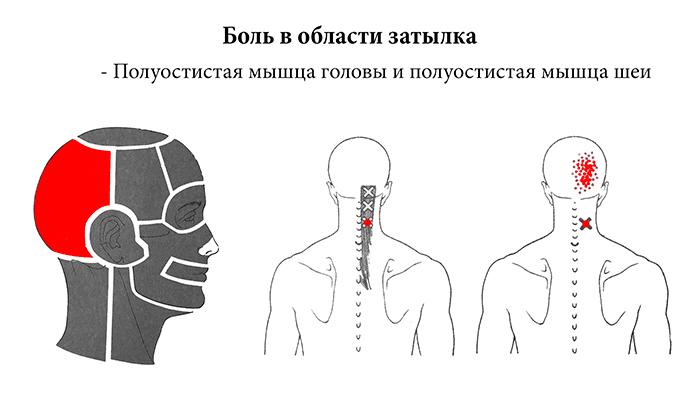 какие головные боли