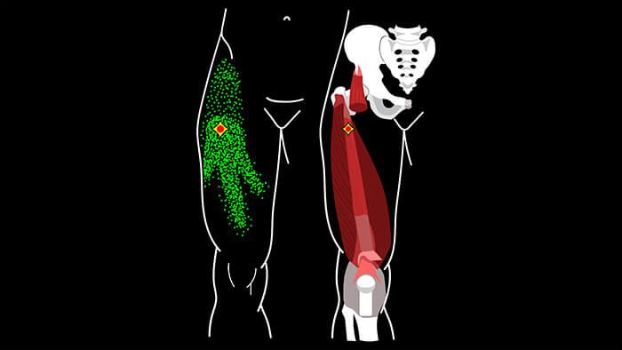 промежуточная широкая мышца бедра триггерные точки