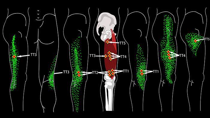 латеральная широкая мышца бедра